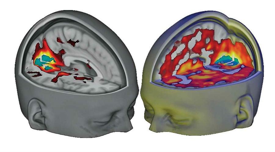 LSD hersenen